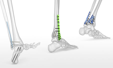 Use of Bone Screws in Internal Fixation