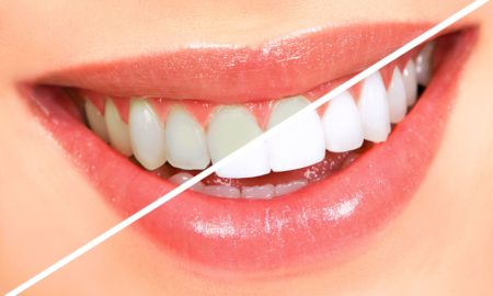 Best Cosmetic & Restorative Dentist In Washington DC | L'Enfant Plaza Dental Arts