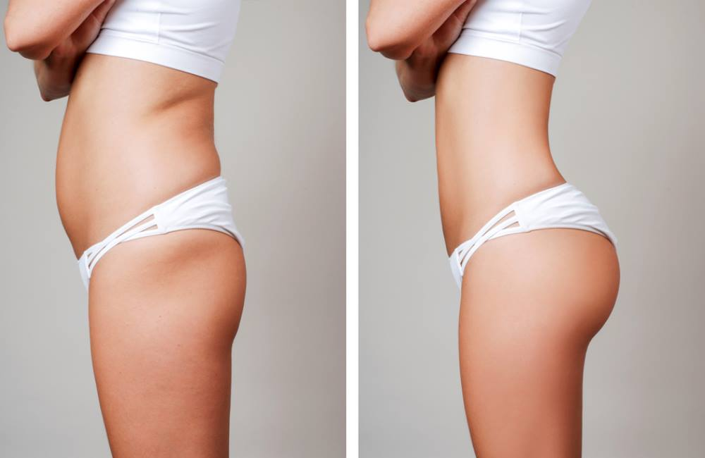 liposuction cost in Punjab